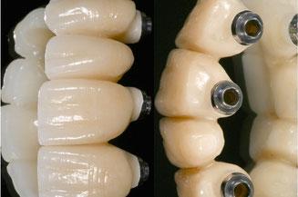 protesis, laboratorio, dientes, ceramica, estetica, clínica dental integral bruno negri, bruno dentista, pilar de la horadada, calidad, implantes, dentista, dolor muela, empaste, bruno negri, odontologo, doctor, dr. bruno negri, periodoncia, cirugia oral,