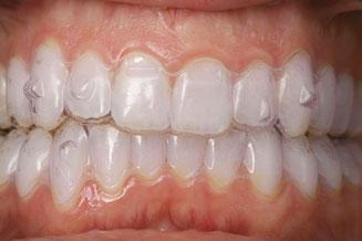 Bild: Invisalign, Schiene, Zahnkorrektur, unsichtbare Schiene, schiefe Zähne, Aligner, Zahnarzt Hamburg