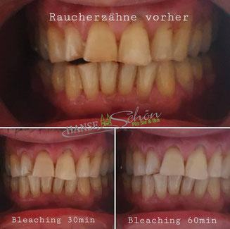 Zahnbleaching weisse Zähne Lübeck