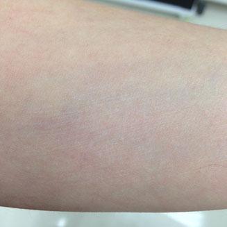 スリッカーによるひっかき傷。ここからアレルゲンの侵入や菌の増殖が始まることがあるのです。