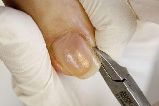 足の爪切り