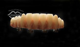barre hybride, Nobel biocare, dentply sirona, édentement total, implantologie