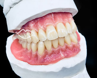 Complet résine, Adjointe, Dents, sourire