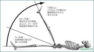 札幌市-腰椎の神経根に異常