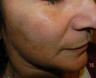 spot solare dopo pochi giorni dopo terapia con laser Q-switched 532, si vedono i tessuti già schiariti ma ancora in guarigione.