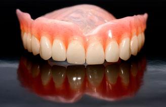 Herausnehmbarer Zahnersatz