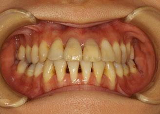 矯正治療後に歯茎の退縮