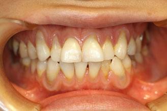 歯茎が長くなってしまっている