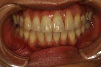 歯ぐき再生
