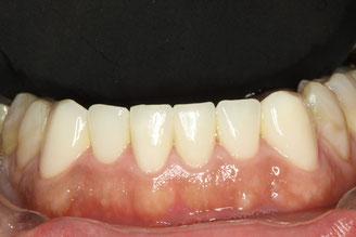 歯がすり減ってしまった時の審美歯科治療