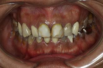 テトラサイクリン変色歯 治療前