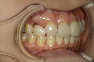 審美歯科で歯の形の修正