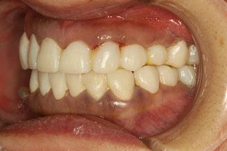 審美歯科の仮歯