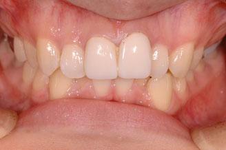 前歯が長い 治療前