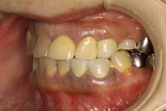 審美歯科で噛みあわせ治療