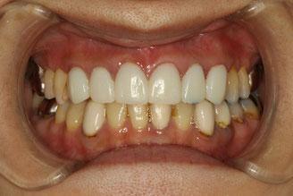 審美歯科治療で、仮歯に変えて歯茎の炎症を抑えている状態。
