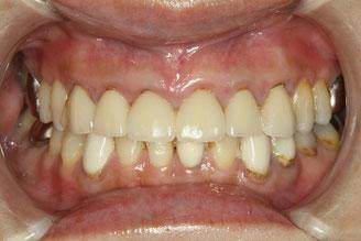 前歯6本のオールセラミックが外れてしまって炎症を起こしています