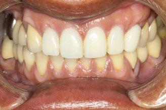 歯茎の再生を行い仮歯を入れた状態