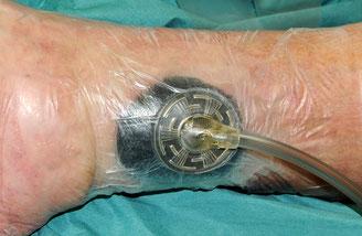 So liegt eine Vakuumpumpe auf der Wunde. (Foto: Mechlin)