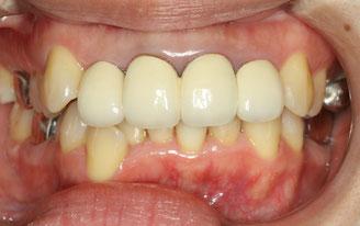 差し歯場合の矯正治療