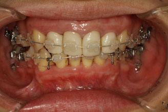 矯正中の仮歯