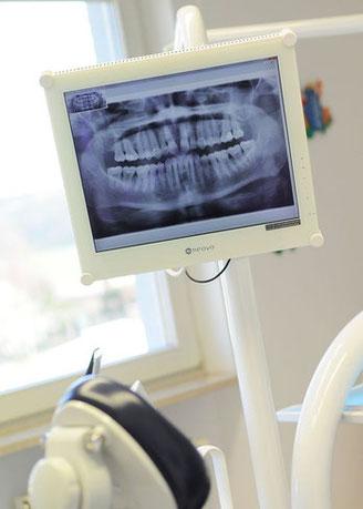 Wiedergabe der Röntgenbilder auf dem Bildschirm