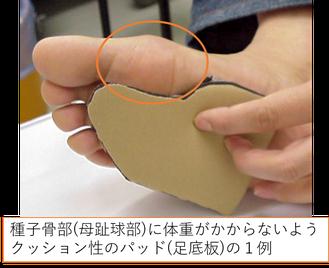 種子骨障害のパッド(足底板・インソール)