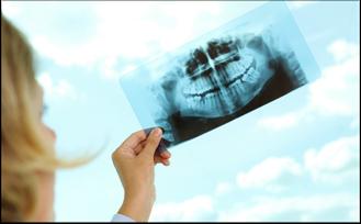 Müssen die Weisheitszähne entfernt werden? Was empfehlen Zahnärzte? (© pressmaster - Fotolia.com)