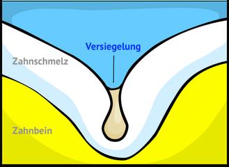 Fissurenversiegelung: Kein Platz mehr für Bakterien! (© wigerio)