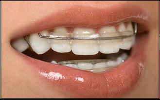 Wann ist der beste Zeitpunkt für eine KFO-Behandlung? Der Zahnarzt sagt es Ihnen! (© BVDC - CanStockPhoto Inc.)