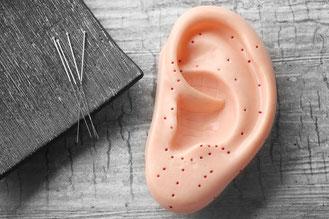 Ohrakupunktur, Ohr- Akupunkturnadeln