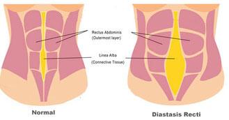 image 1 - diastasis recti