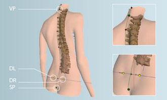 Wirbelsäulenvermessung mittels 3D-Haltungsanalyse-Programm in meiner Praxis für Osteopathie