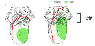 図1 患部と摘出範囲