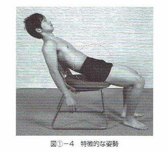 腸腰筋にトリガーポイントがある場合