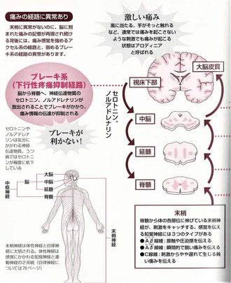 痛み感覚のアクセルとブレーキ