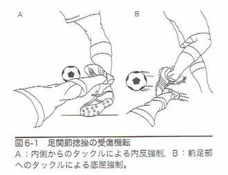 足関節捻挫の受傷機転