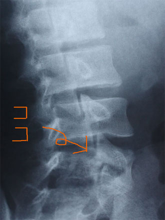 私の腰椎分離症の実際のレントゲンです。