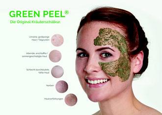 GREEN PEEL® Kräuterschälkur