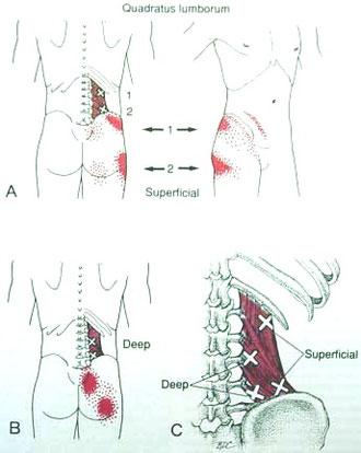 Triggerpunkte LWS Mquadratus lumborum