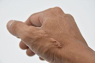 Hand benötigt Narbenbehandlung nach Verletzung in Naturheilpraxis Voglreiter Yogaschule Schulungszentrum