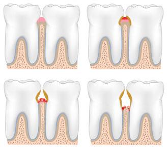 Stadien der Parodontitis (Bild: fotolia)