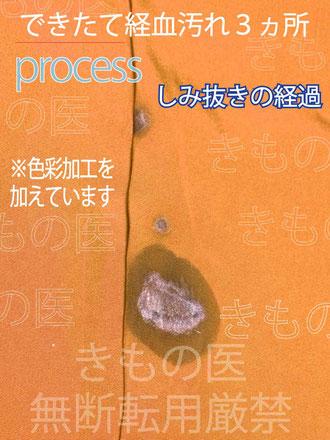 着物のお尻にできた経血汚れのしみ抜き処置の途中風景画像