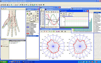 Voll`sche Messung, Kreisdiagramme