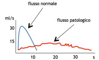 Esempio di tracciato dell'uroflussimetria