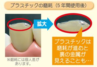 八戸市 くぼた歯科 セラミック 金属アレルギー ホワイトニング 安い おすすめ
