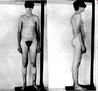 Sindrome de Klinefelter, Klinefeler fotos.