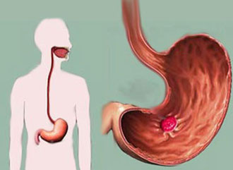 ulcera estomacal
