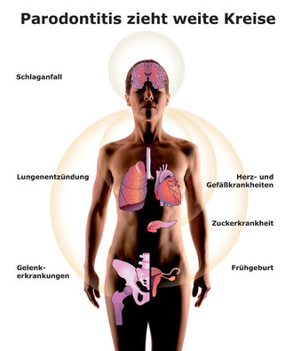 Gesundheitsrisiken durch Parodontose (Parodontitis) (© proDente e.V.)