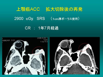 上顎癌ACC、拡大切除の再発